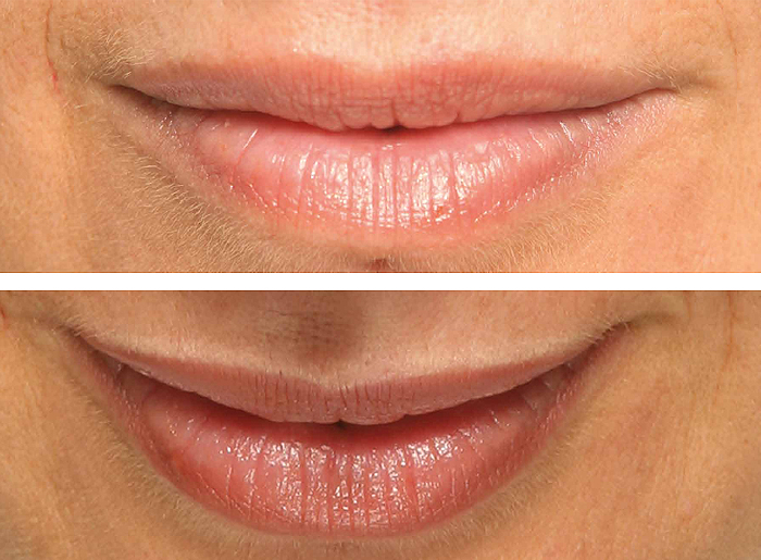 micro-labios