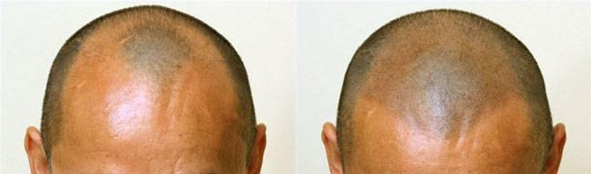 micropigmentacion-capilar-antes-y-despues